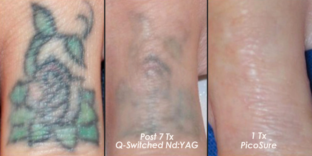 Tattoo Removal Radiant Touch Laser Center Wichita Falls
