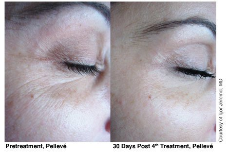 SMALL-2-Pelleve-Before-After-Treatment-Photos1