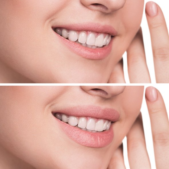 Female lips before and after lip augmentation