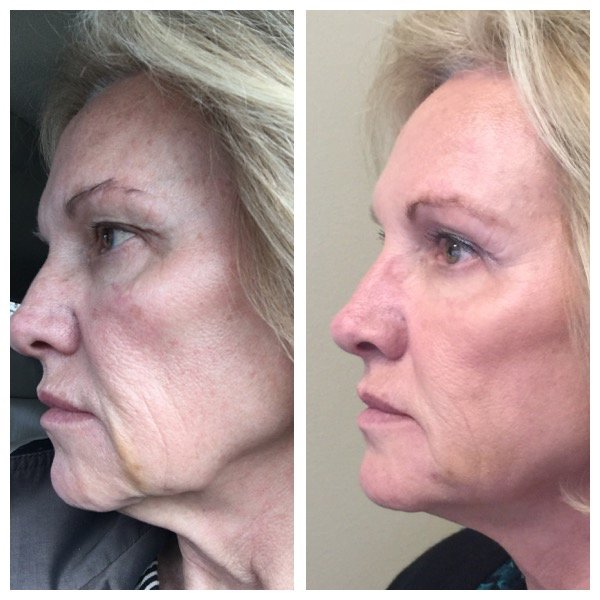 Non-Surgical Facelift (NovaThreads) - Radiant Touch Laser ...